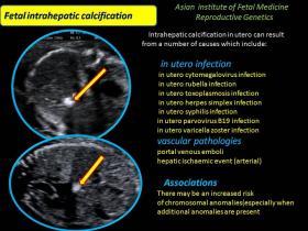 Calcificação Hepática Fetal