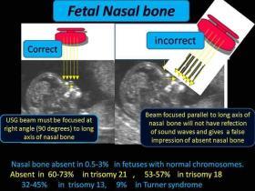 Fetal Nasal Bone