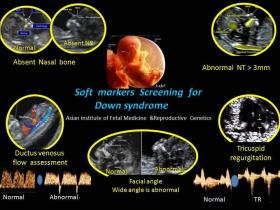Soft Markers Screening for Down Syndrome