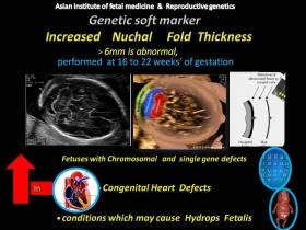 Increased Nuchal Fold Thickness